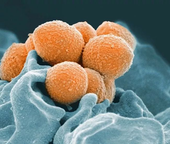 This handout image provided by the National Institute of Allergy and Infectious Diseases shows an electron microscope image of Group A Streptococcus (orange) during phagocytic interaction with a human neutrophil (blue). Health officials have issued an alert, saying nine people have died in an ongoing invasive group. A streptococcus outbreak in the London, Ont., area. THE CANADIAN PRESS/AP-National Institute of Allergy and Infectious Diseases via AP