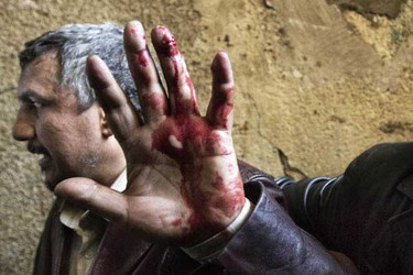 An Egyptian anti-regime protester, wounded during clashes with government supporters, gestures as he is taken into a makeshift clinic at the Ibad al-Rahman mosque near the flashpoint Tahrir square in Cairo in Cairo on February 2, 2011. AFP PHOTO/MARCO LONGARI