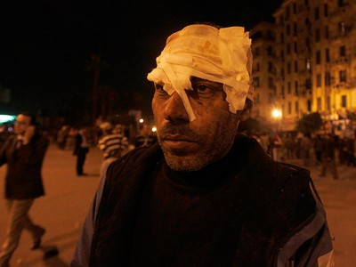 Anti-government demonstrator, wounded during clashes with pro-government protesters, waits to be treated at a makeshift medical triage station at Tahrir square in Cairo on February 2, 2011. (REUTERS/Amr Abdallah Dalsh)