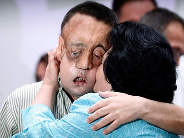 Face transplant recipient Rafael embraces his mother Juana during a news conference at Virgen del Rocio hospital in Seville May 4, 2010. Rafael, who received the lower face transplant at the hospital in January, suffered from neurofibromatosis, a genetically-inherited disorder which caused facial tumours. Rafael's operation is the second time the procedure has been performed in Spain.  (REUTERS)