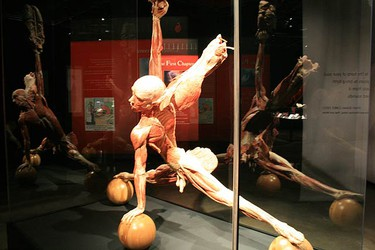 An exhibit seen at Body Worlds & The Story Of The Heart shown at the Ontario Science Centre on Oct. 8, 2009 in Toronto. (JENNY YUEN, Sun Media)