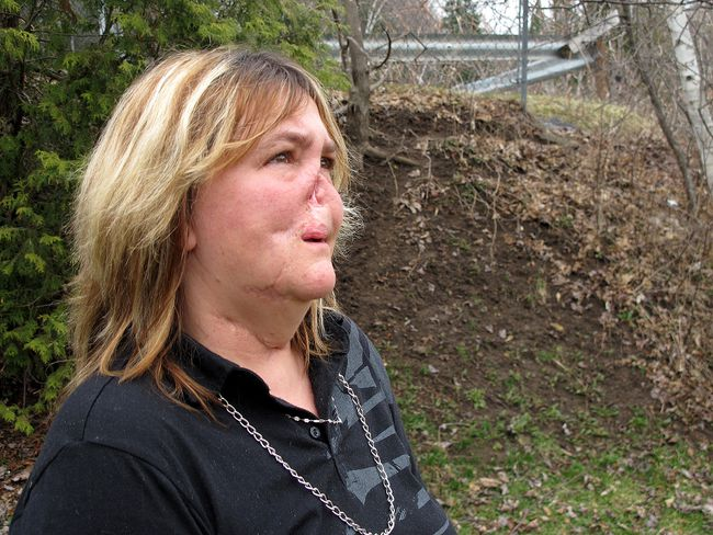 Woman Disfigured By Pit Bull Bailed Out By Strangers