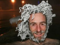 A bather from Quebec show off frozen hair while bathing in a 40 C (104 F) pool in air temperatures of -30 C (-22 F) at Takhini Hot Pools in Whitehorse