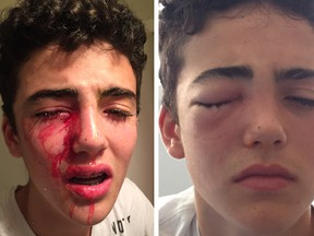 North Vancouver teen Matthys van Bylandt suffered a serious eye injury on Monday night when he was pelted in the face by an egg.