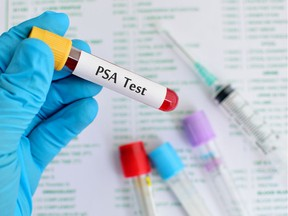 Blood sample for PSA (prostate-specific antigen) testing.