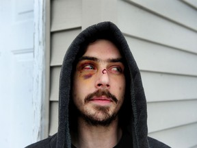 SURREY, February 14, 2021 -- Alex Fisher, who says he was beaten by the Surrey RCMP after being mistaken for a robbery suspect in Surrey, BC., on February 14, 2021. He was apprehended in the vicinity of the alleged crime riding a BMX bike and wearing a hoodie.  (NICK PROCAYLO/PNG)     00063801A ORG XMIT: 00063801A [PNG Merlin Archive]
